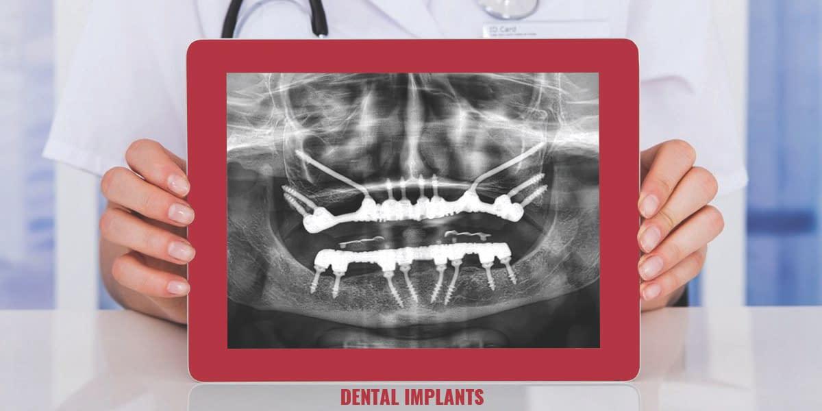 dental Imaplants